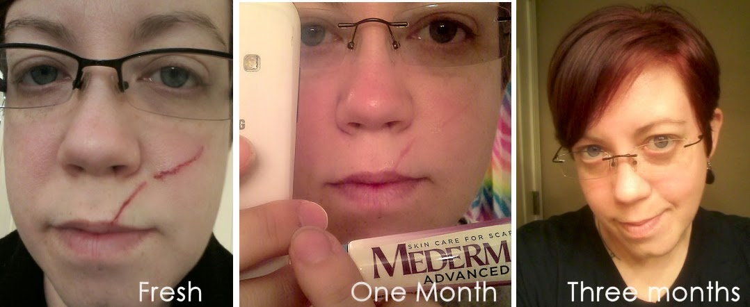 Mederma for acne scars reviews